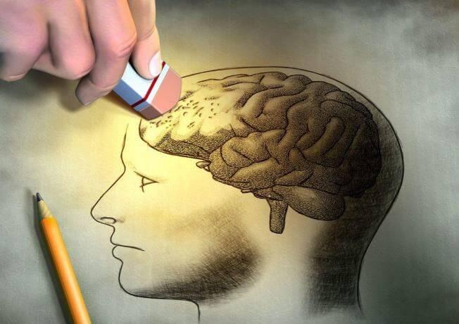 Bệnh alzheimer là bệnh sa sút trí tuệ người lớn tuổi