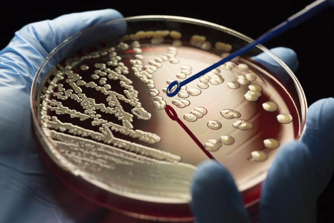Nước ô nhiễm có thể chứa vi sinh vật mà chúng ta không nhìn thấy được bằng mắt thường