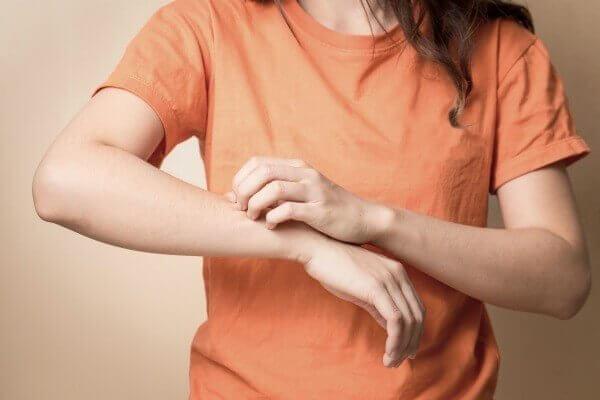 Cách chữa dị ứng đơn giản tại nhà