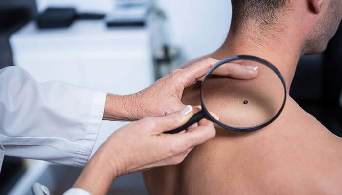 6 dấu hiệu ung thư nguy hiểm bạn cần biết trước khi quá muộn