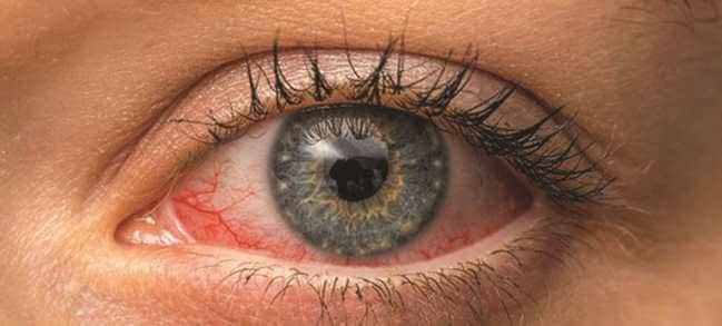 Đau mắt do ô nhiễm nước