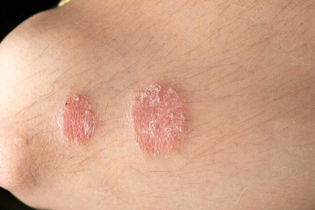 Các bệnh về da khi sử dụng nước ô nhiễm