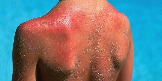 Con người mặc các bệnh về da ngày càng nhiều