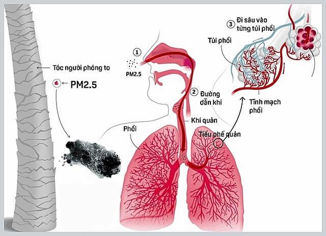 Ô nhiễm không khí là một trong những nguyên nhân gây nên các căn bệnh nguy hiểm