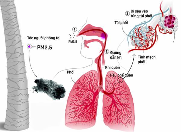 Ảnh hưởng nguy hiểm của bụi mịn PM 2.5 tới sức khoẻ