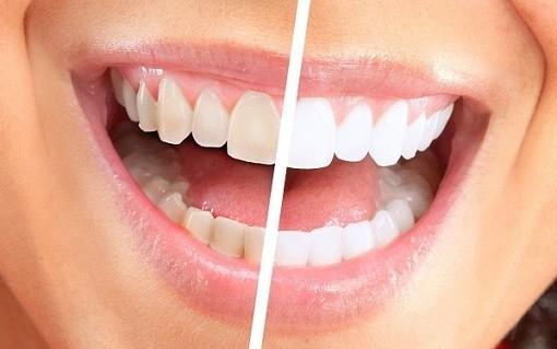 Mách bạn 4 bí quyết bảo vệ hàm răng chắc khỏe và sáng bóng - Máy lọc nước  nano Aqualife Vietnam